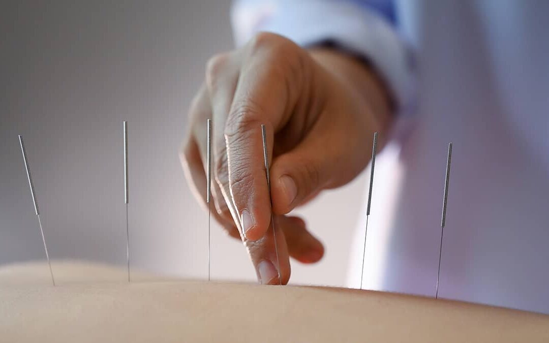 8 Benefits of Going to a Chinese Medicine and Acupuncture Clinic