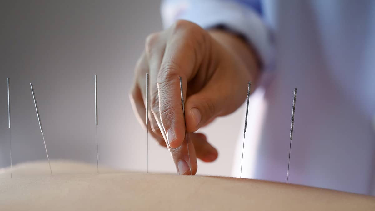 acupuncture women who are the back and acupuncture treatment at salon