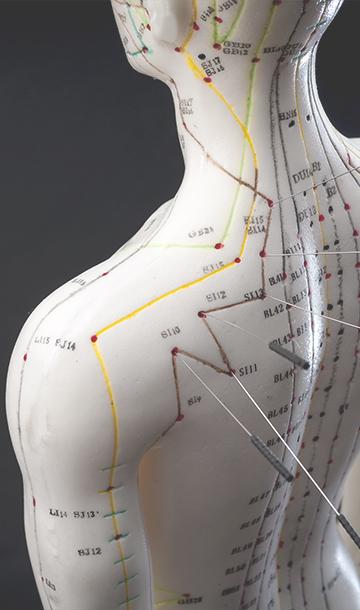 alternative medicine acupuncture concept model
